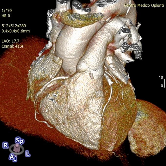 Cardio TC