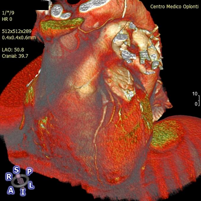 Tomografia Coronarica Computerizzata